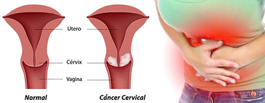 Patología Cervical Uterina